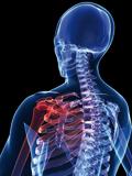 冷冲击疗法用于缓解肌肉僵硬
